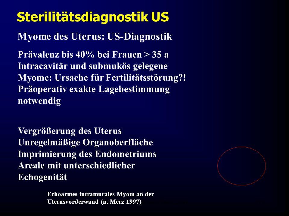 FIS - Hormonell aktuell Zypern 200618 Sterilitätsdiagnostik US Myome des Uterus: US-Diagnostik Vergrößerung des Uterus Unregelmäßige Organoberfläche Imprimierung des Endometriums Areale mit unterschiedlicher Echogenität Echoarmes intramurales Myom an der Uterusvorderwand (n.