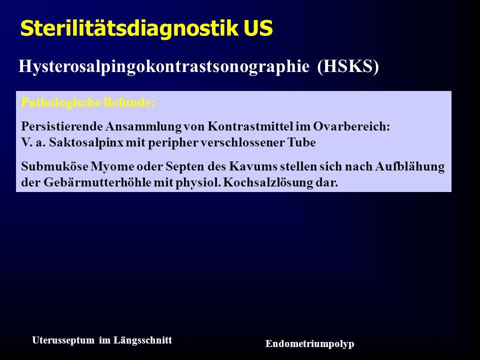 FIS - Hormonell aktuell Zypern 200623 Hysterosalpingokontrastsonographie (HSKS) Sterilitätsdiagnostik US Pathologische Befunde: Persistierende Ansammlung von Kontrastmittel im Ovarbereich: V.