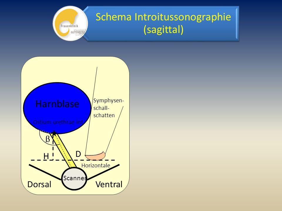 ß Harnblase Ostium urethrae int. DorsalVentral D ß Symphysen- schall- schatten H Scanner Horizontale Schema Introitussonographie (sagittal)
