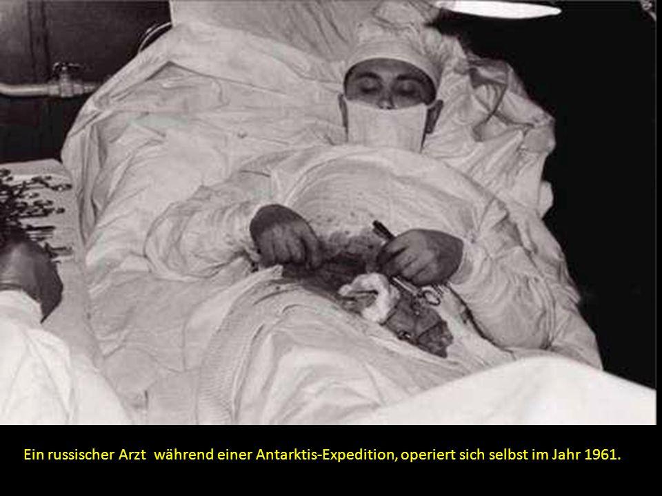 Ein russischer Arzt während einer Antarktis-Expedition, operiert sich selbst im Jahr 1961.