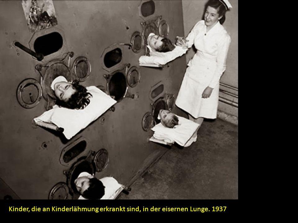 Kinder, die an Kinderlähmung erkrankt sind, in der eisernen Lunge. 1937