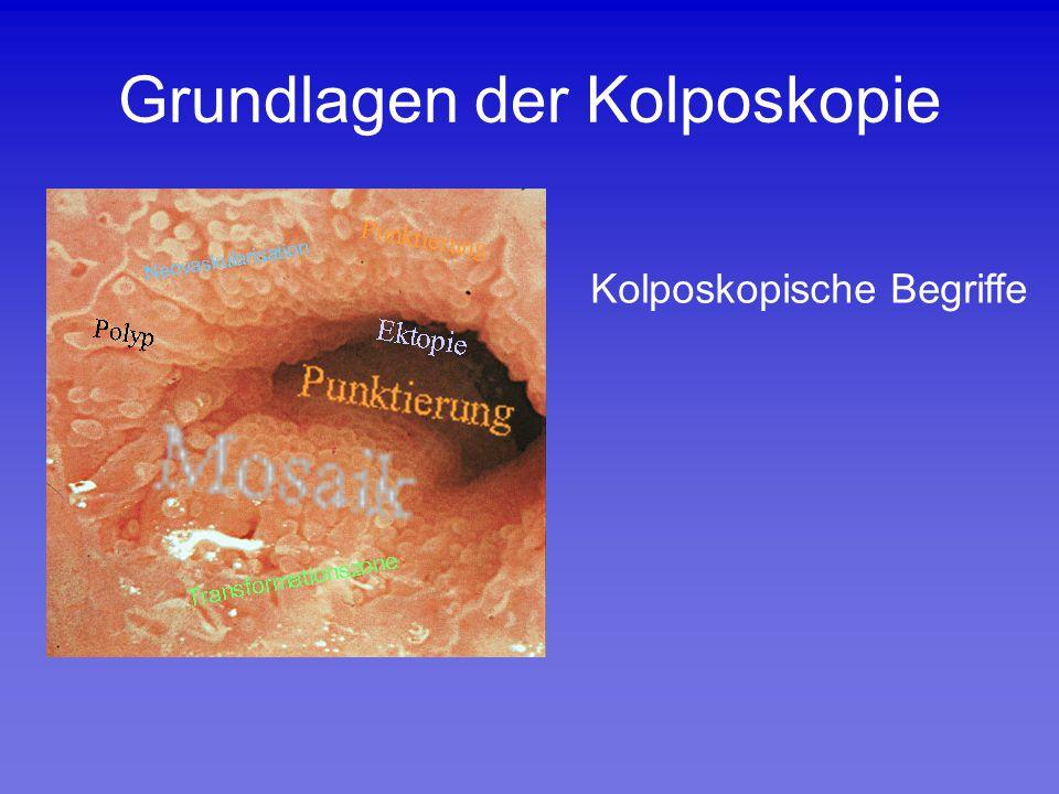 Grundlagen der Kolposkopie Kolposkopische Begriffe