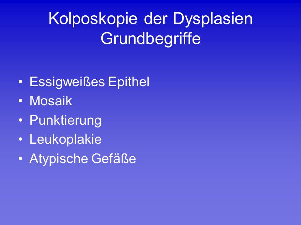 Kolposkopie der Dysplasien Grundbegriffe Essigweißes Epithel Mosaik Punktierung Leukoplakie Atypische Gefäße