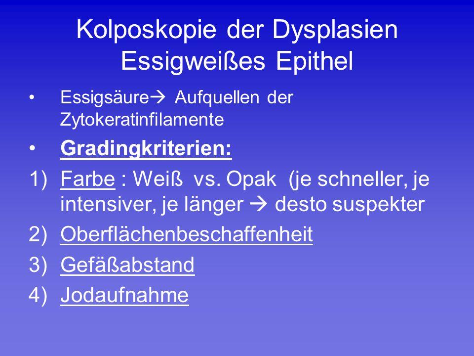 Kolposkopie der Dysplasien Essigweißes Epithel Essigsäure  Aufquellen der Zytokeratinfilamente Gradingkriterien: 1)Farbe : Weiß vs. Opak (je schnelle