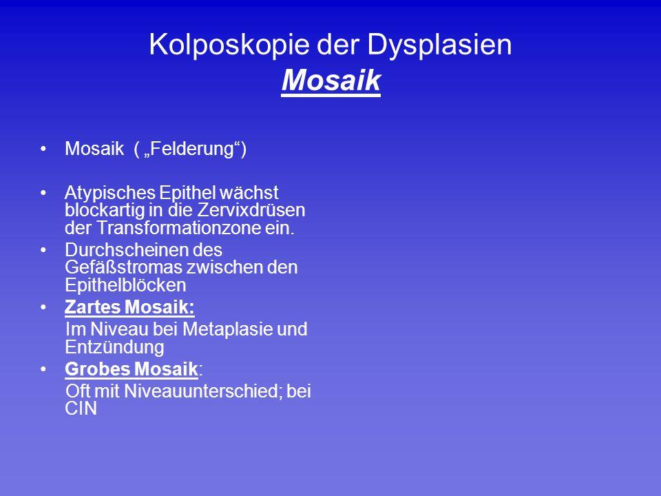 """Kolposkopie der Dysplasien Mosaik Mosaik ( """"Felderung"""") Atypisches Epithel wächst blockartig in die Zervixdrüsen der Transformationzone ein. Durchsche"""