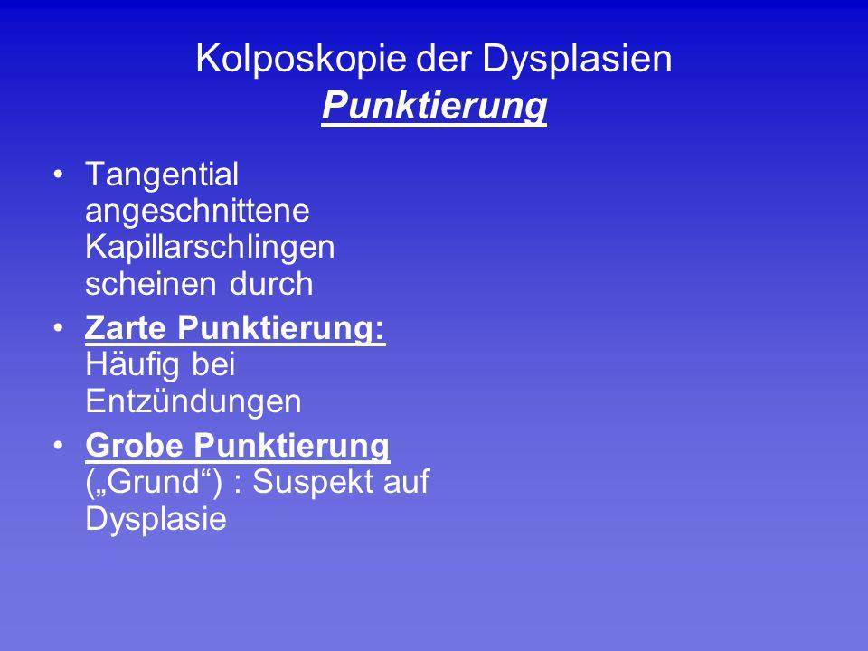 Kolposkopie der Dysplasien Punktierung Tangential angeschnittene Kapillarschlingen scheinen durch Zarte Punktierung: Häufig bei Entzündungen Grobe Pun