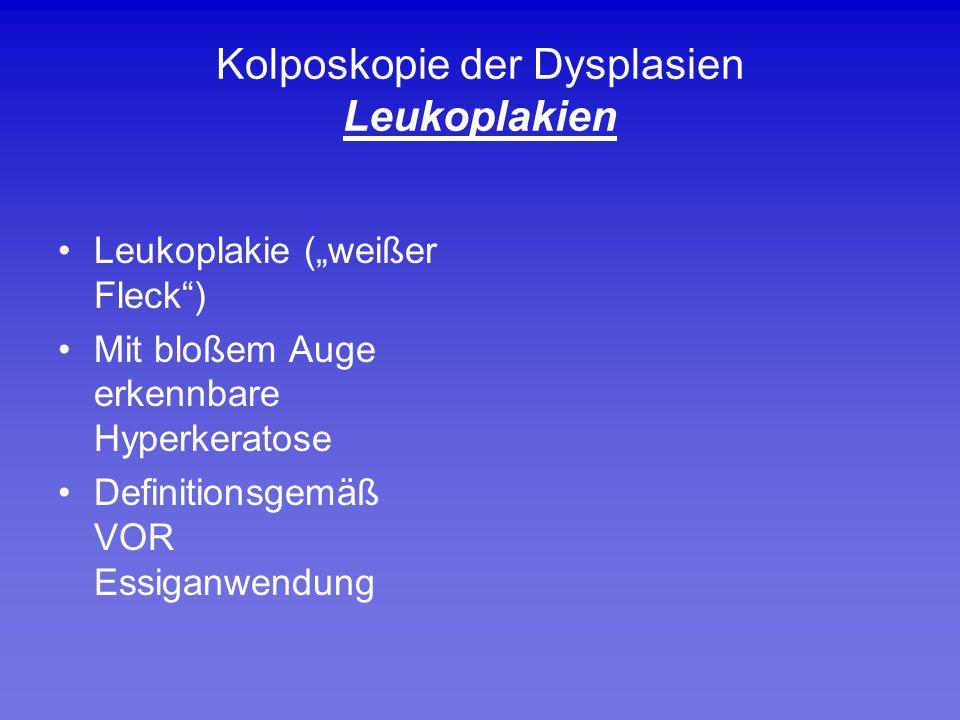 """Kolposkopie der Dysplasien Leukoplakien Leukoplakie (""""weißer Fleck"""") Mit bloßem Auge erkennbare Hyperkeratose Definitionsgemäß VOR Essiganwendung"""