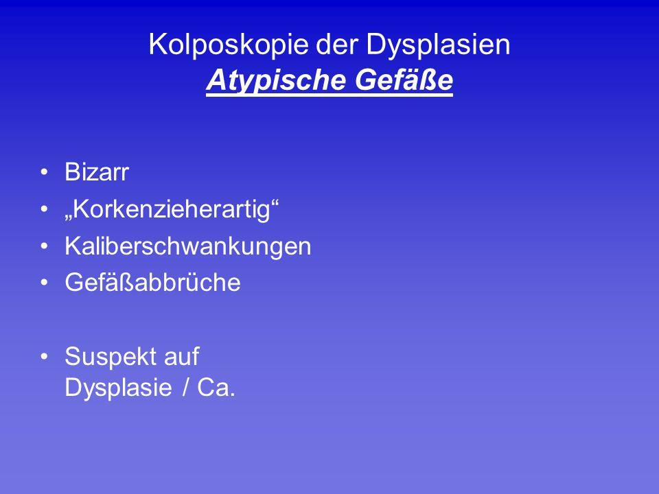 """Kolposkopie der Dysplasien Atypische Gefäße Bizarr """"Korkenzieherartig"""" Kaliberschwankungen Gefäßabbrüche Suspekt auf Dysplasie / Ca."""
