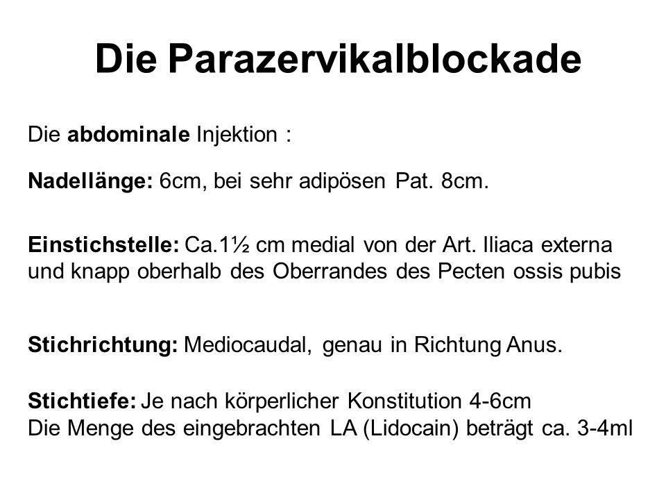 Die Parazervikalblockade Die abdominale Injektion : Nadellänge: 6cm, bei sehr adipösen Pat. 8cm. Einstichstelle: Ca.1½ cm medial von der Art. Iliaca e