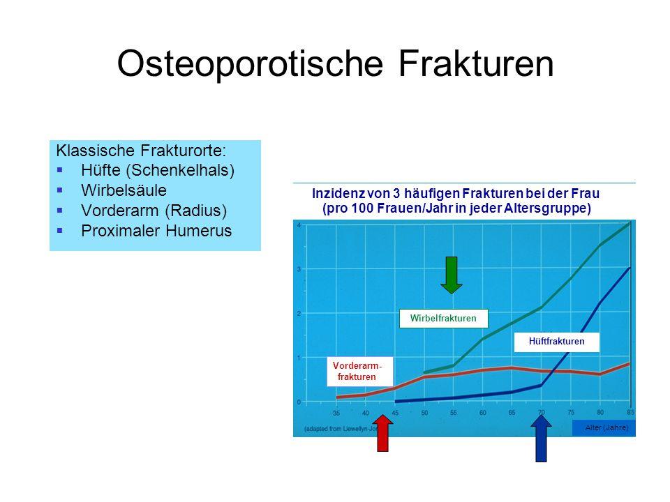 Osteoporotische Frakturen Klassische Frakturorte:  Hüfte (Schenkelhals)  Wirbelsäule  Vorderarm (Radius)  Proximaler Humerus Inzidenz von 3 häufig