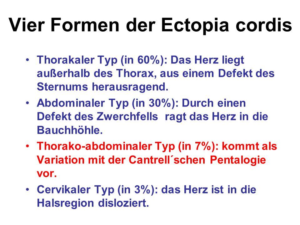 Vier Formen der Ectopia cordis Thorakaler Typ (in 60%): Das Herz liegt außerhalb des Thorax, aus einem Defekt des Sternums herausragend. Abdominaler T