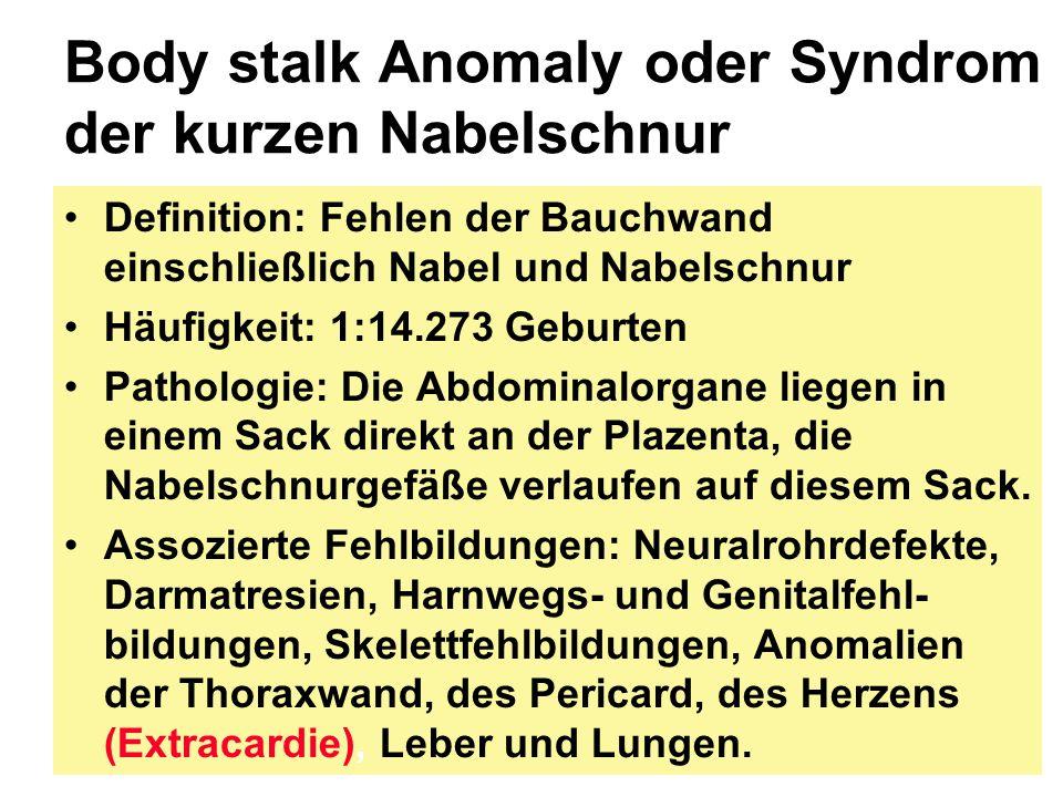 Body stalk Anomaly oder Syndrom der kurzen Nabelschnur Definition: Fehlen der Bauchwand einschließlich Nabel und Nabelschnur Häufigkeit: 1:14.273 Gebu