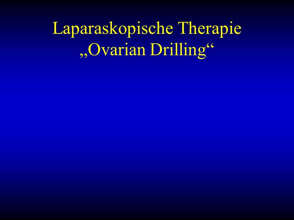 """Laparaskopische Therapie """"Ovarian Drilling"""