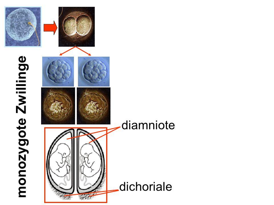 dichoriale monozygote Zwillinge