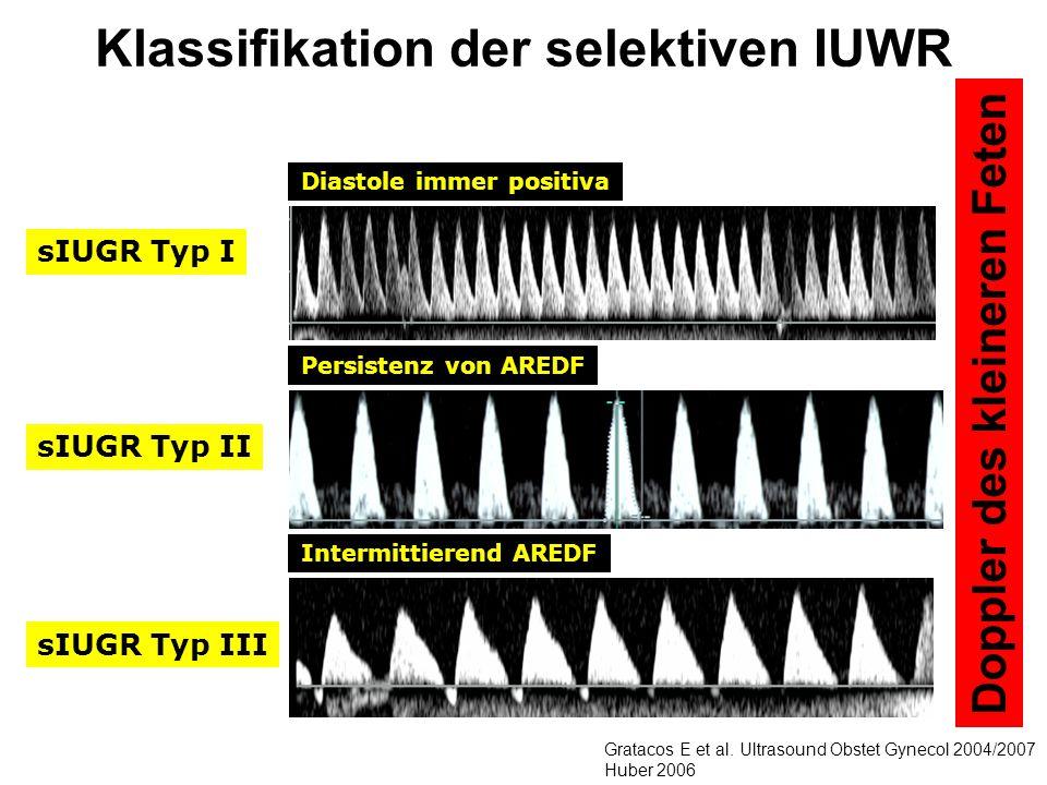 sIUGR Typ I sIUGR Typ II sIUGR Typ III Klassifikation der selektiven IUWR Diastole immer positiva Persistenz von AREDF Intermittierend AREDF Gratacos