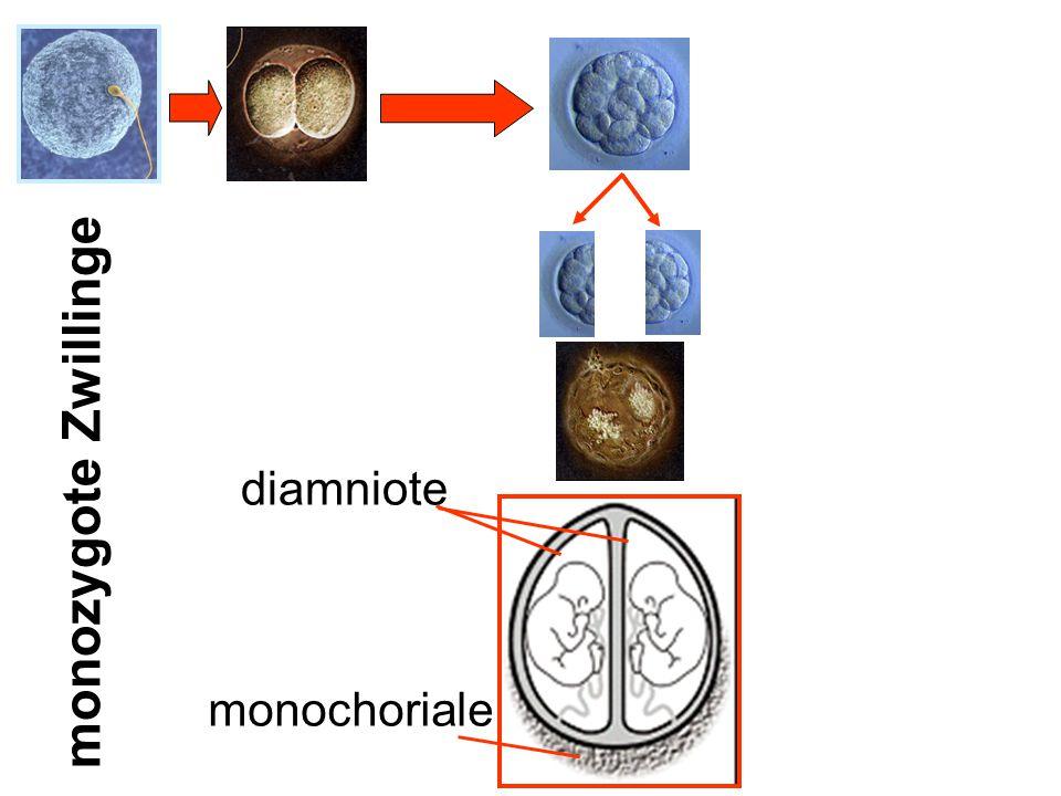 diamniote monochoriale monozygote Zwillinge
