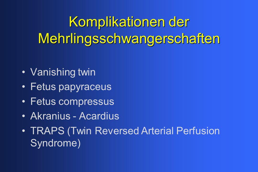 Komplikationender Mehrlingsschwangerschaften Komplikationen der Mehrlingsschwangerschaften Vanishing twin Fetus papyraceus Fetus compressus Akranius -