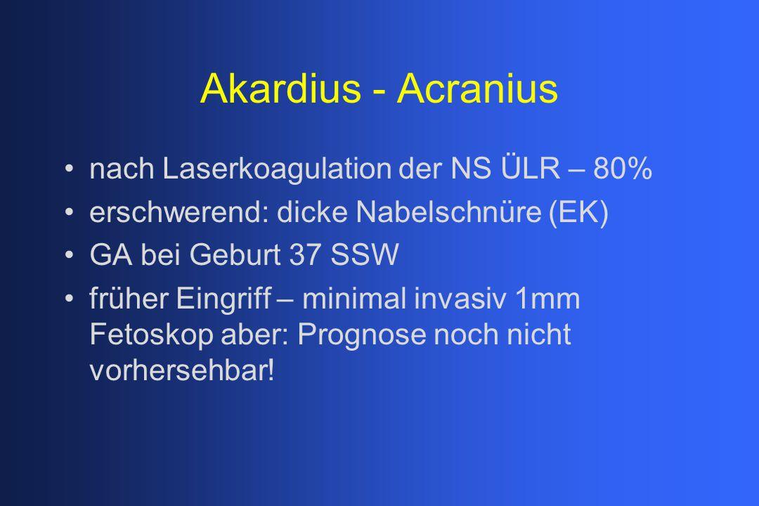Akardius - Acranius nach Laserkoagulation der NS ÜLR – 80% erschwerend: dicke Nabelschnüre (EK) GA bei Geburt 37 SSW früher Eingriff – minimal invasiv 1mm Fetoskop aber: Prognose noch nicht vorhersehbar!