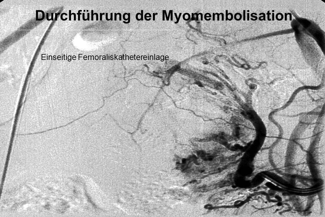 Durchführung der Myomembolisation Einseitige Femoraliskathetereinlage