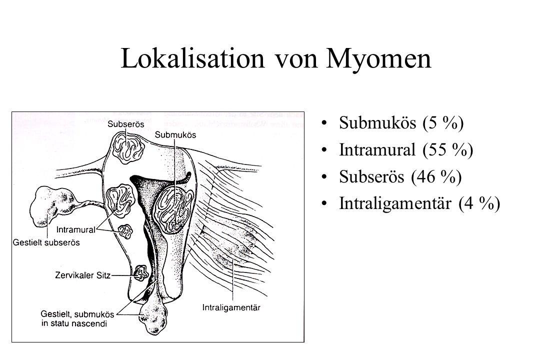 Lokalisation von Myomen Submukös (5 %) Intramural (55 %) Subserös (46 %) Intraligamentär (4 %)