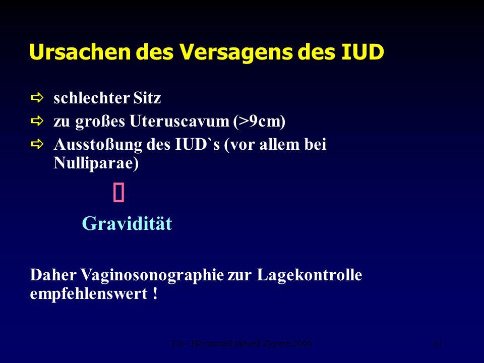 Fis - Hormonell aktuell Zypern 200631 Ursachen des Versagens des IUD  schlechter Sitz  zu großes Uteruscavum (>9cm)  Ausstoßung des IUD`s (vor alle