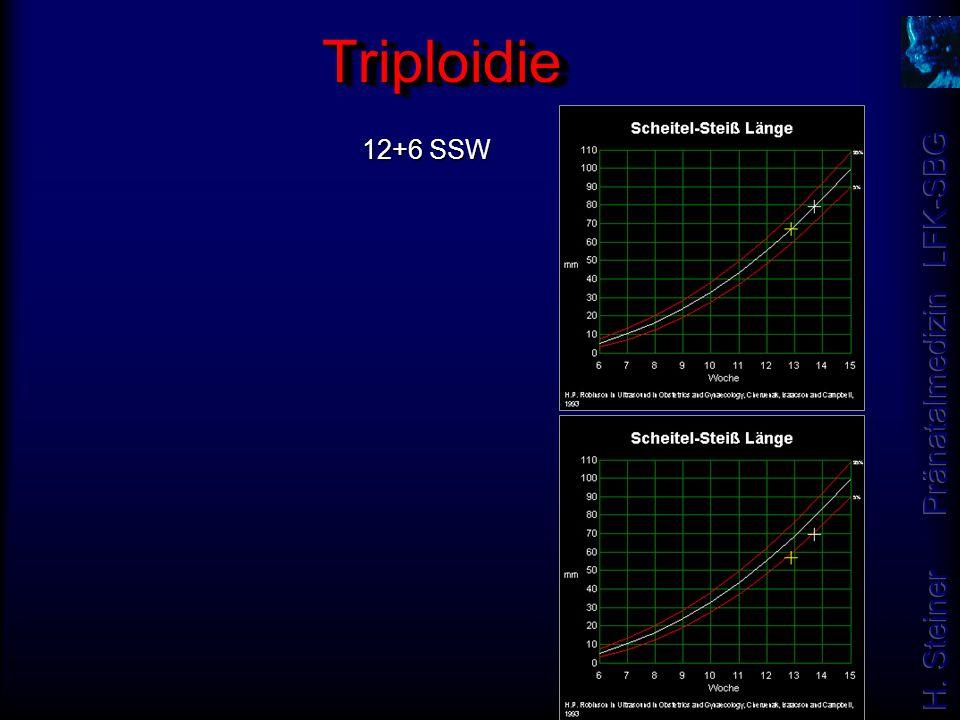 12+6 SSW TriploidieTriploidie