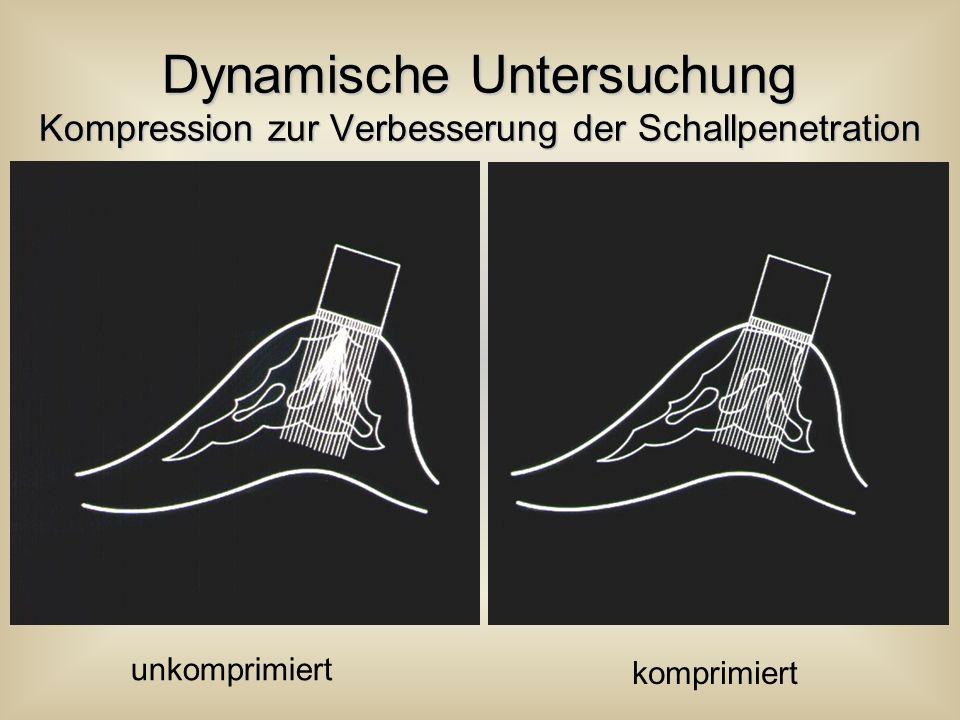 Dynamische Untersuchung Kompression zur Verbesserung der Schallpenetration unkomprimiert komprimiert