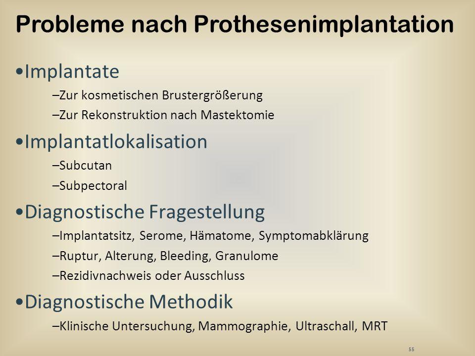55 Implantate –Zur kosmetischen Brustergrößerung –Zur Rekonstruktion nach Mastektomie Implantatlokalisation –Subcutan –Subpectoral Diagnostische Frage