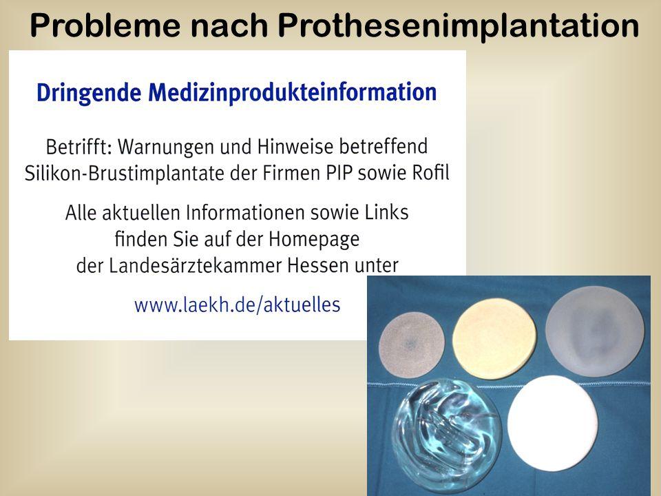 56 Probleme nach Prothesenimplantation