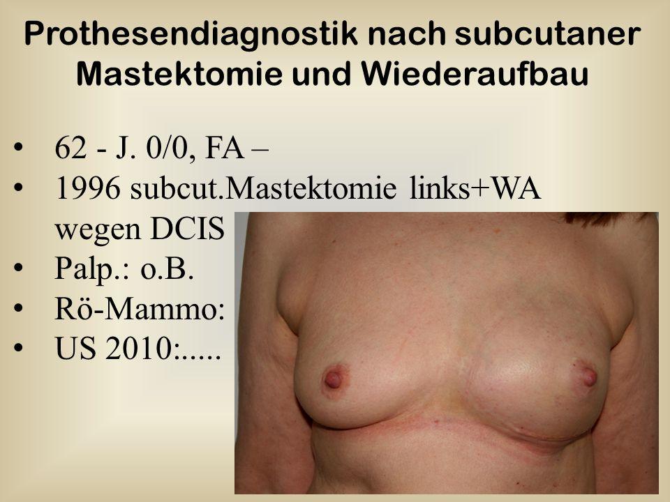 62 - J.0/0, FA – 1996 subcut.Mastektomie links+WA wegen DCIS Palp.: o.B.