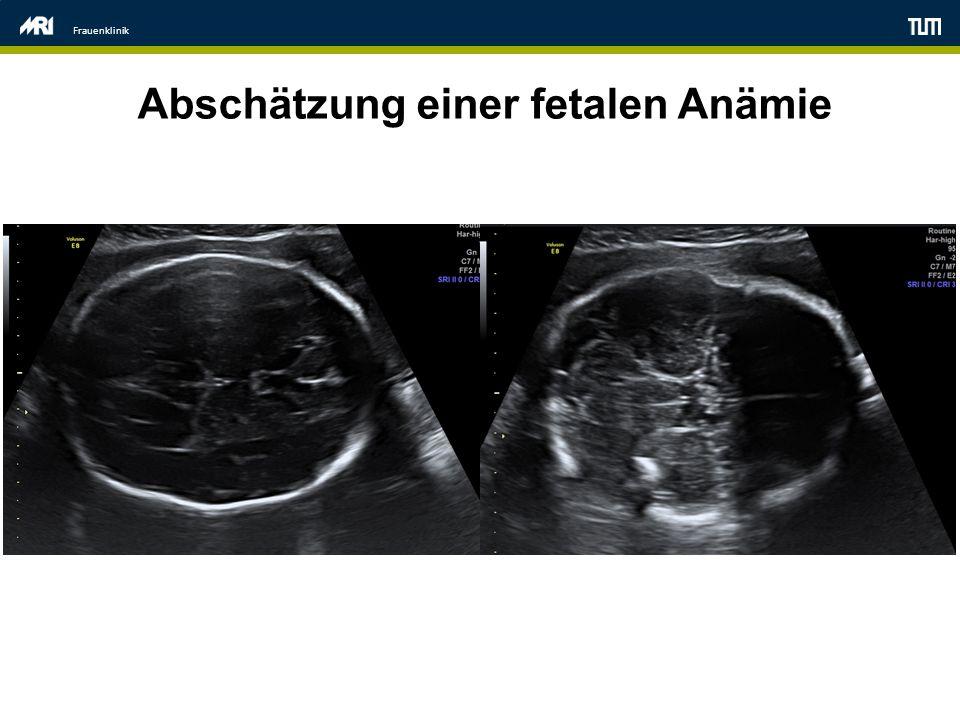 Frauenklinik Abschätzung einer fetalen Anämie