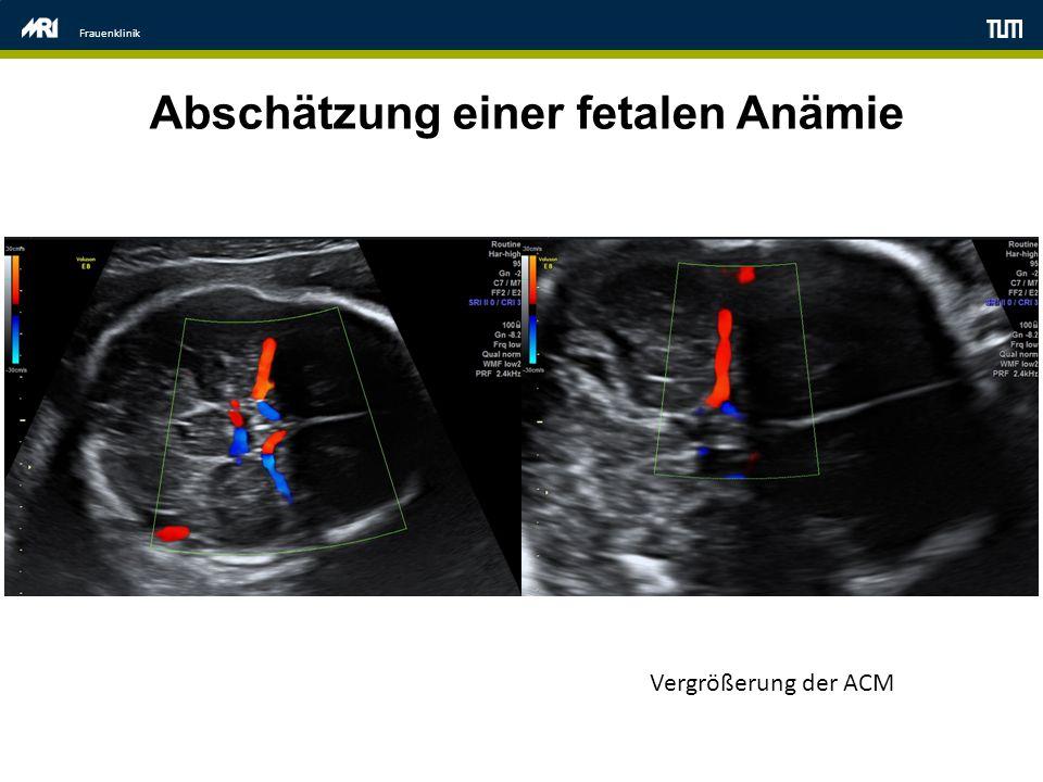 Frauenklinik Abschätzung einer fetalen Anämie Vergrößerung der ACM