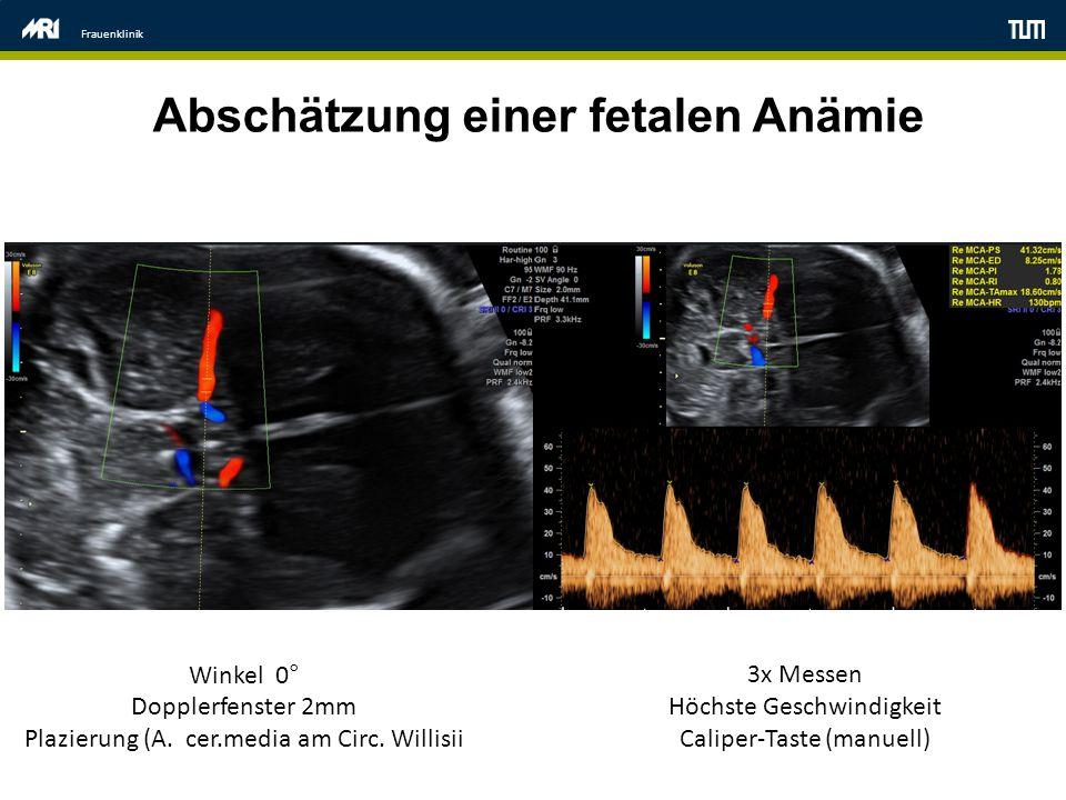 Frauenklinik Abschätzung einer fetalen Anämie Winkel 0° Dopplerfenster 2mm Plazierung (A. cer.media am Circ. Willisii 3x Messen Höchste Geschwindigkei