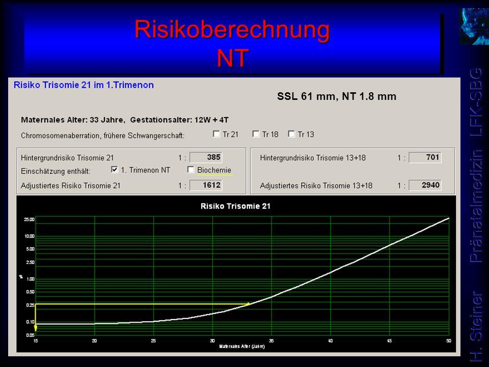 Risikoberechnung NT SSL 61 mm, NT 1.8 mm