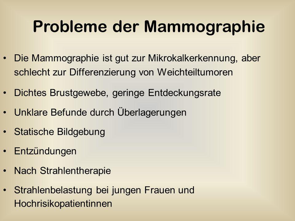Die Mammographie ist gut zur Mikrokalkerkennung, aber schlecht zur Differenzierung von Weichteiltumoren Dichtes Brustgewebe, geringe Entdeckungsrate U
