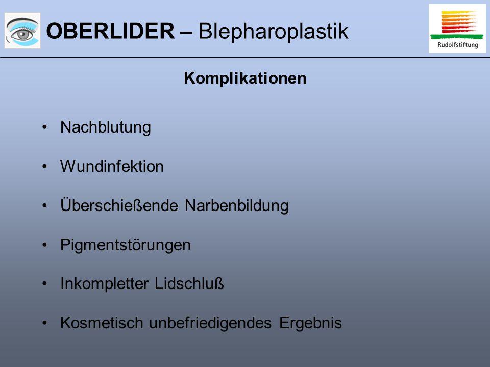 OBERLIDER – Blepharoplastik Nachblutung Wundinfektion Überschießende Narbenbildung Pigmentstörungen Inkompletter Lidschluß Kosmetisch unbefriedigendes Ergebnis Komplikationen