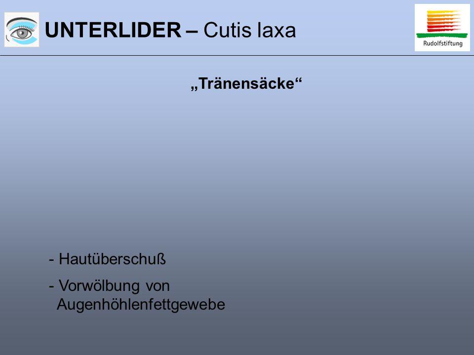 """UNTERLIDER – Cutis laxa - Hautüberschuß - Vorwölbung von Augenhöhlenfettgewebe """"Tränensäcke"""""""