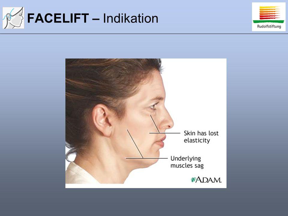 FACELIFT – Indikation