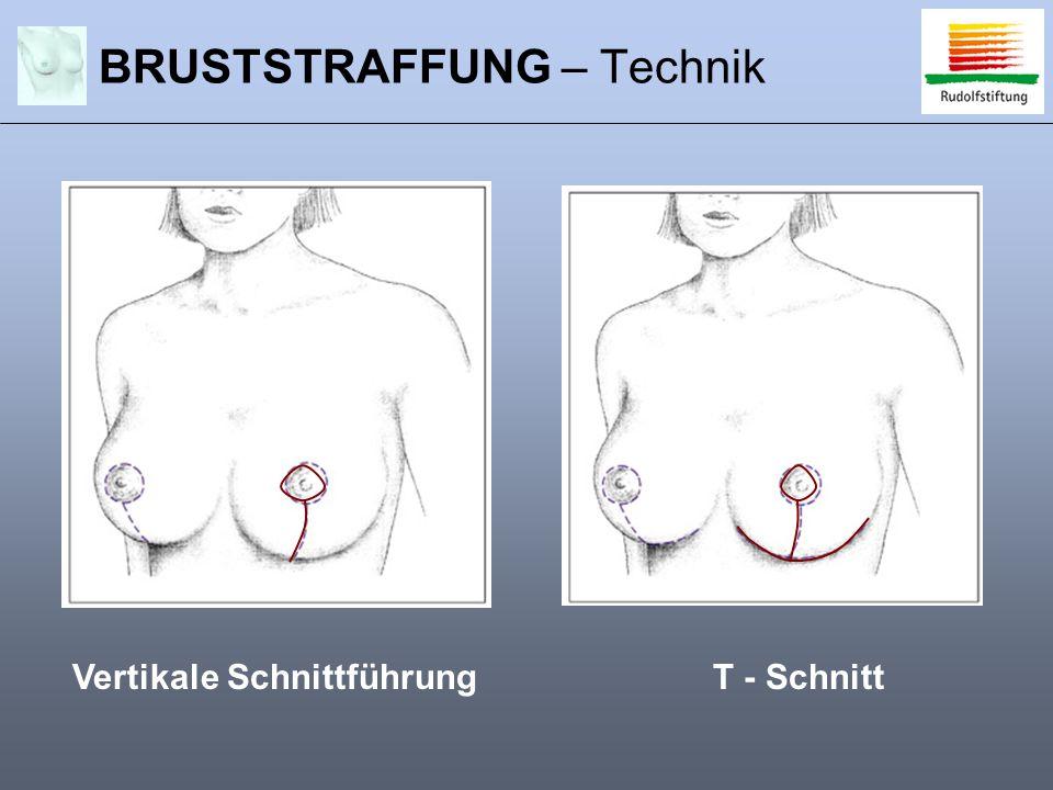 BRUSTSTRAFFUNG – Technik Vertikale SchnittführungT - Schnitt