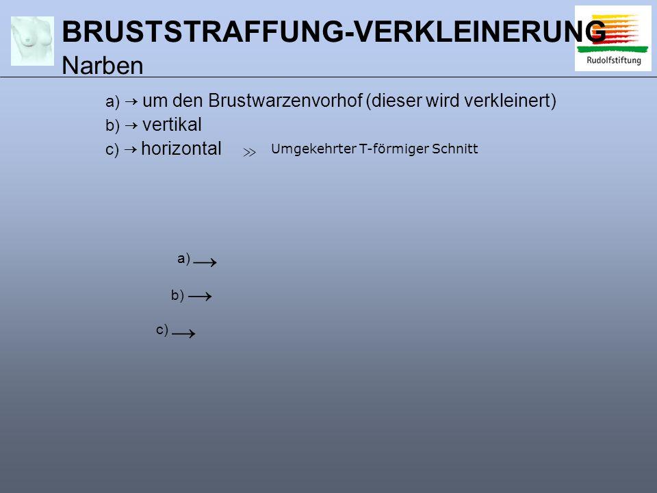 a) → um den Brustwarzenvorhof (dieser wird verkleinert) b) → vertikal c) → horizontal → → → Umgekehrter T-förmiger Schnitt ≫ a) b) c) BRUSTSTRAFFUNG-VERKLEINERUNG Narben