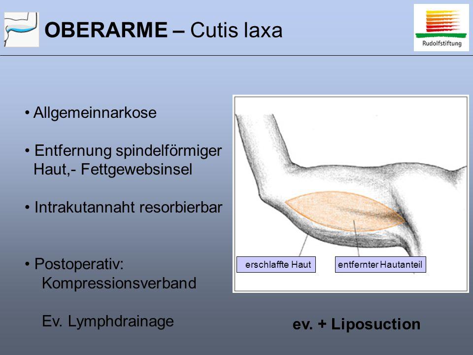 OBERARME – Cutis laxa entfernter Hautanteilerschlaffte Haut ev. + Liposuction Allgemeinnarkose Entfernung spindelförmiger Haut,- Fettgewebsinsel Intra
