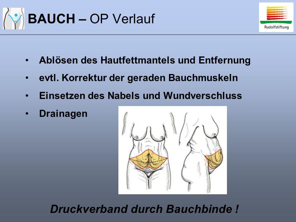 BAUCH – OP Verlauf Ablösen des Hautfettmantels und Entfernung evtl. Korrektur der geraden Bauchmuskeln Einsetzen des Nabels und Wundverschluss Drainag