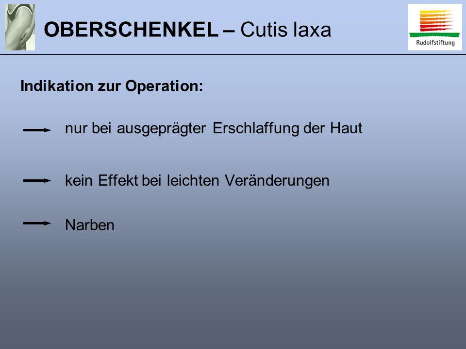 OBERSCHENKEL – Cutis laxa nur bei ausgeprägter Erschlaffung der Haut kein Effekt bei leichten Veränderungen Narben Indikation zur Operation: