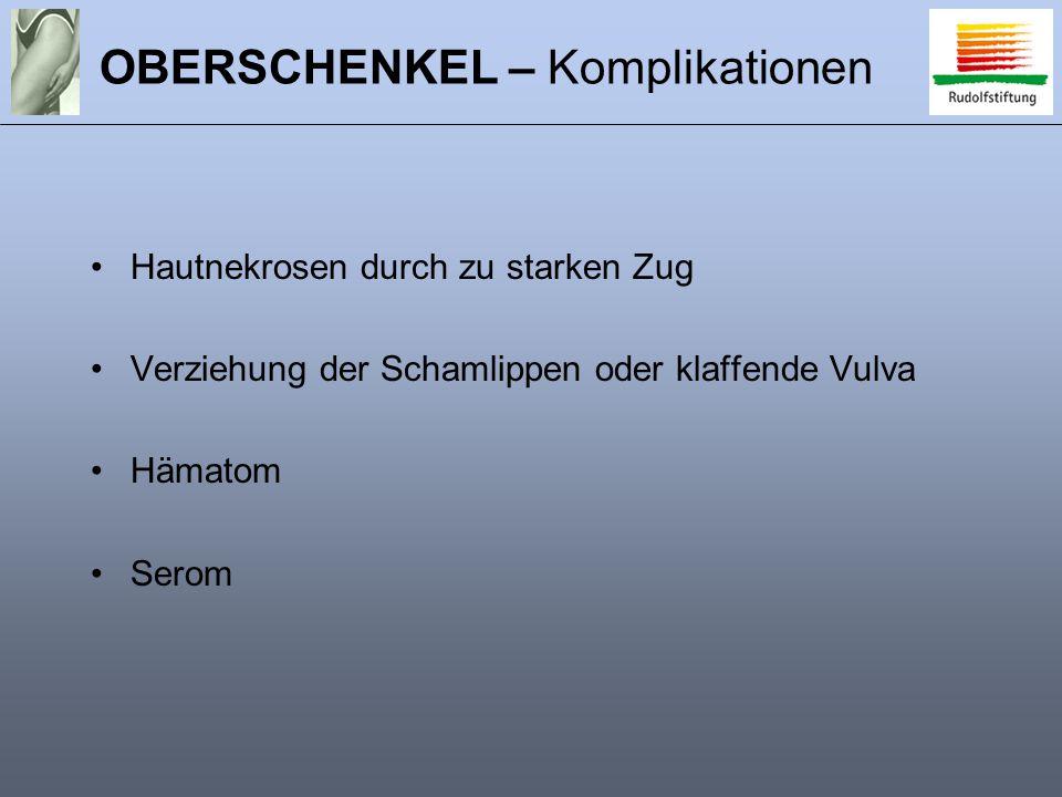 OBERSCHENKEL – Komplikationen Hautnekrosen durch zu starken Zug Verziehung der Schamlippen oder klaffende Vulva Hämatom Serom