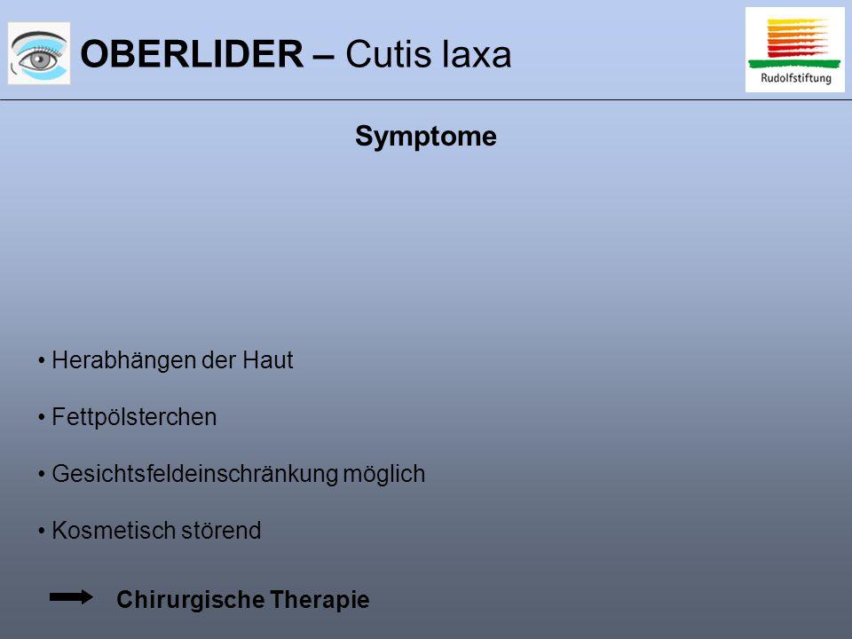 OBERLIDER – Cutis laxa Symptome Herabhängen der Haut Fettpölsterchen Gesichtsfeldeinschränkung möglich Kosmetisch störend Chirurgische Therapie