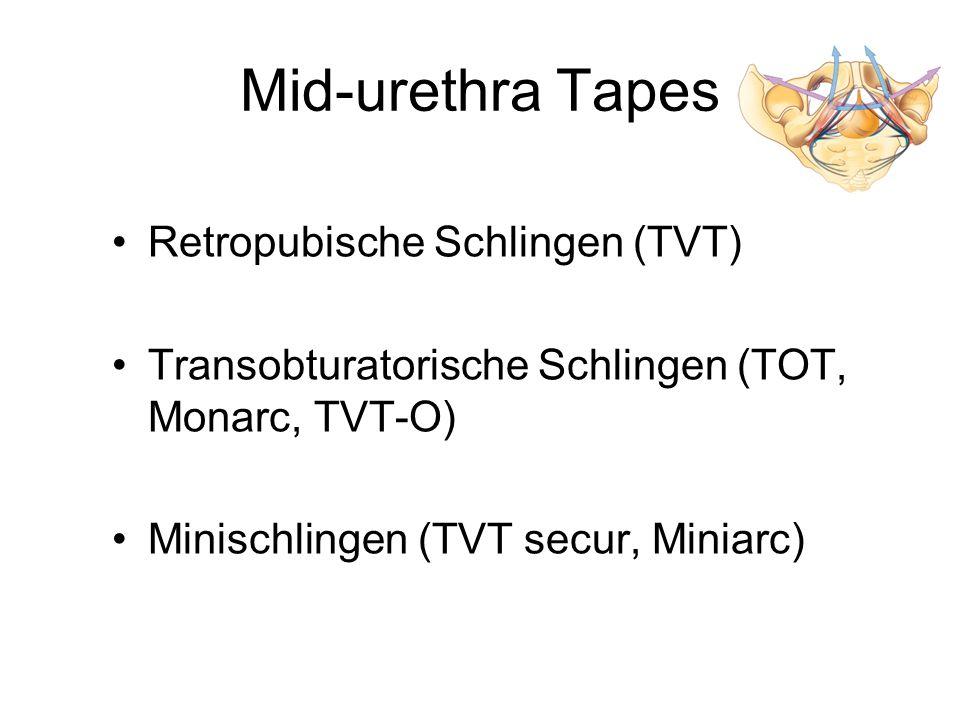 Mid-urethra Tapes Retropubische Schlingen (TVT) Transobturatorische Schlingen (TOT, Monarc, TVT-O) Minischlingen (TVT secur, Miniarc)