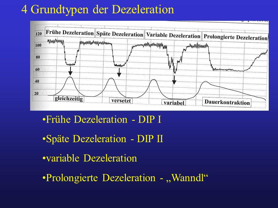 """Frühe Dezeleration - DIP I Späte Dezeleration - DIP II variable Dezeleration Prolongierte Dezeleration - """"Wanndl"""" 4 Grundtypen der Dezeleration"""