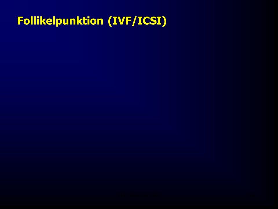 FIS - Pissouri 200840 Follikelpunktion (IVF/ICSI)