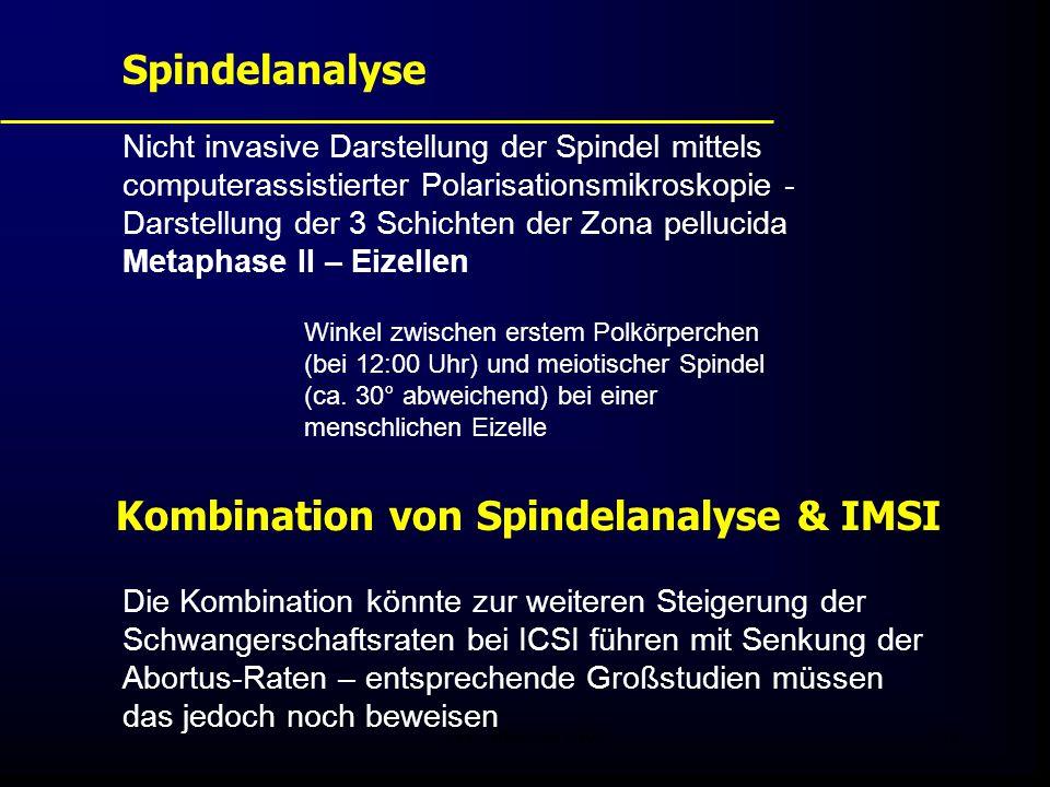 FIS - Pissouri 200842 Nicht invasive Darstellung der Spindel mittels computerassistierter Polarisationsmikroskopie - Darstellung der 3 Schichten der Zona pellucida Metaphase II – Eizellen Spindelanalyse Winkel zwischen erstem Polkörperchen (bei 12:00 Uhr) und meiotischer Spindel (ca.