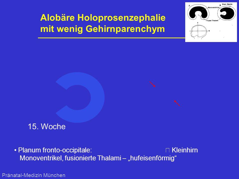 """Alobäre Holoprosenzephalie mit wenig Gehirnparenchym Planum fronto-occipitale: € Kleinhirn Monoventrikel, fusionierte Thalami – """"hufeisenförmig"""" Präna"""